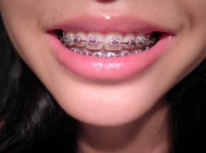 orthodontist - cosmetic dentist