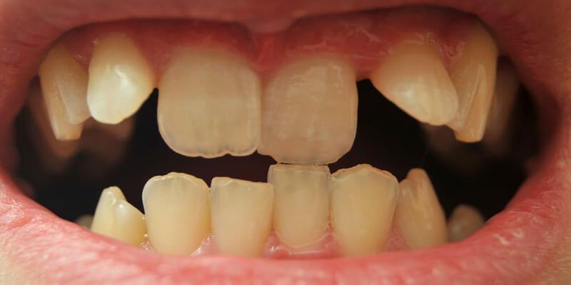 Improve Your Smile - Fix Crooked Teeth   Orthodontics